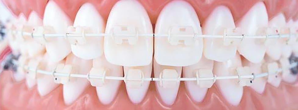 aparelho-de-dente-branco