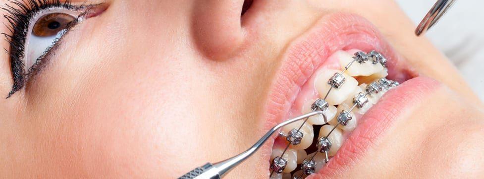 aparelho-odontologico-preco-das-fases-do-tratamento