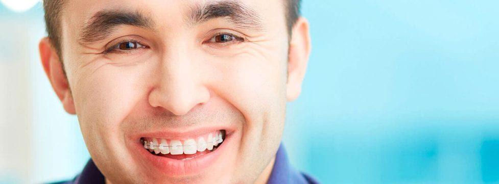 aparelho-ortodontico-fases-do-tratamento-e-precos