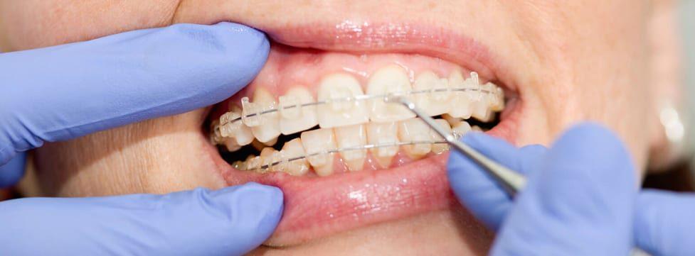 aparelho-ortodontico-transparente