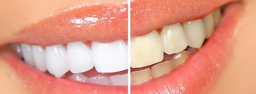 clareamento-dental-barato