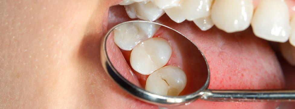 dente-com-carie