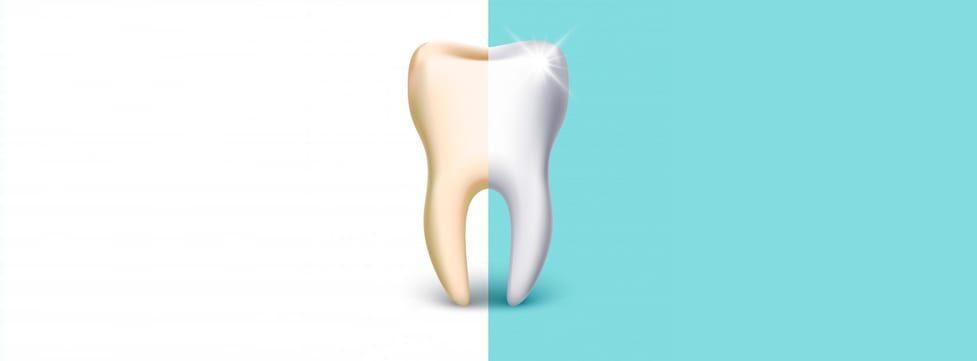 dentes-mais-brancos