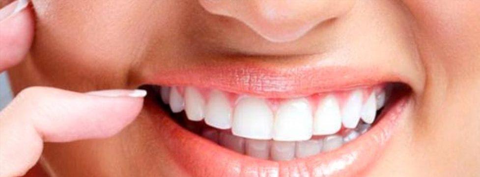 dentista-para-clareamento-dental-tudo-sobre