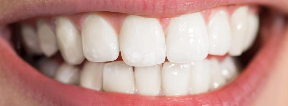 descubra-5-beneficios-do-clareamento-dental