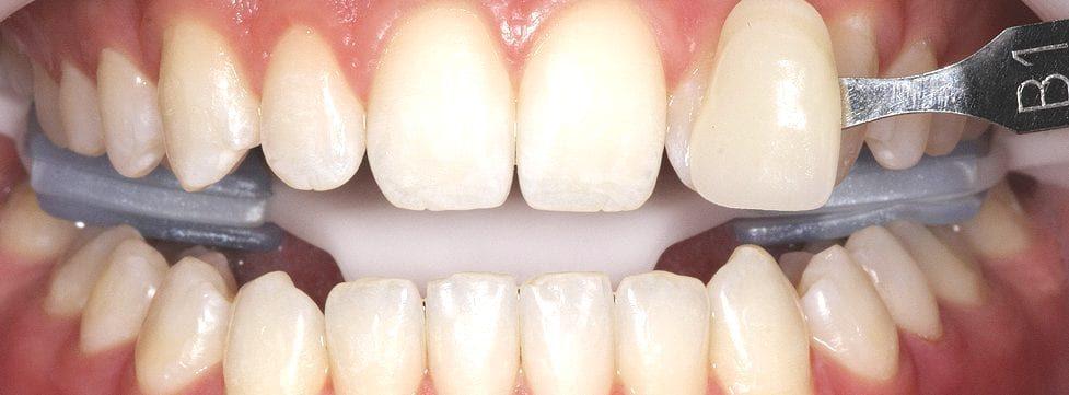 onde-fazer-clareamento-dental