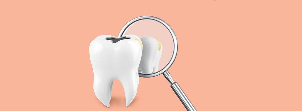 para-que-serve-o-tratamento-de-canal-de-dente