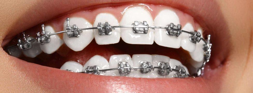 quanto-custa-aparelho-ortodontico