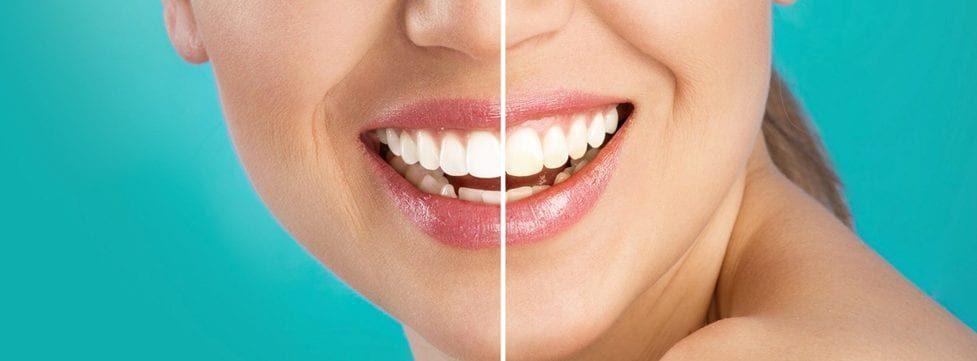 quanto-custa-o-clareamento-dentario-dicas-e-conhecimentos