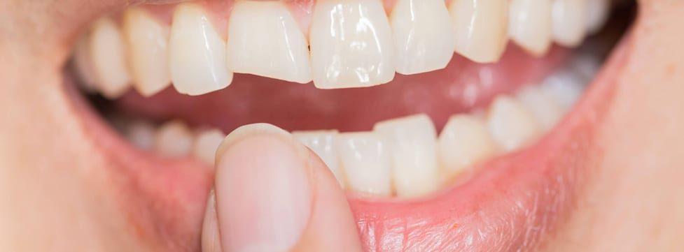 seu-dente-esta-trincado-sintomas-e-tratamento