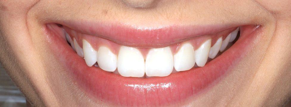 tenho-vontade-de-fazer-clareamento-dental